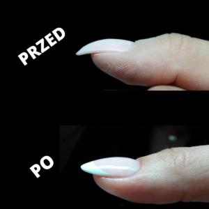 korekta paznokci opadających